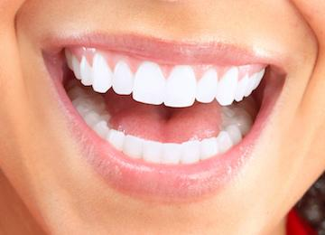 smile | get whiter teeth | professional teeth whitening