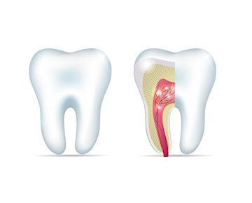 split tooth diagram | treat root canal pain