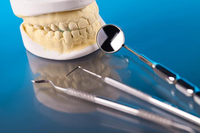 dental bridge | durham | the smile shop