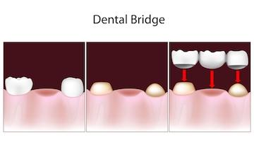 dental bridge diagram | tooth replacement options