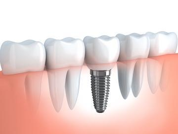 dental implant | morrisville nc | the smile shop