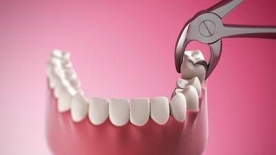 The Smile Shop Dental Blog Faster Healing Tooth Extractions