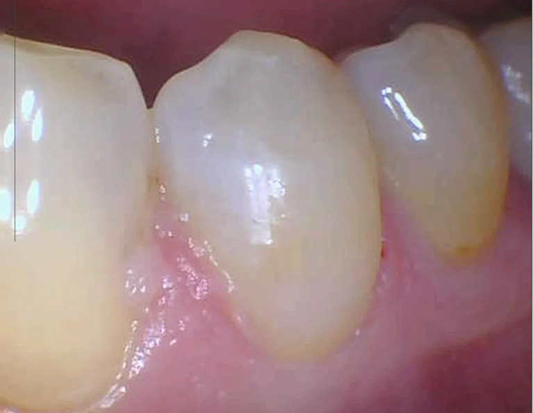 Tooth-colored-fillings-near-the-gum-line-After-Image