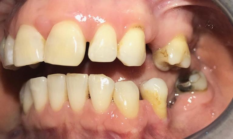 Improving-Your-Smile-with-Comprehensive-Treatment-Before-Image