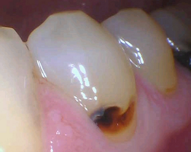 Tooth-colored-fillings-near-the-gum-line-Before-Image